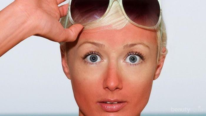 [FORUM] Butuh Skin Care untuk ngeratain wajah yang belang nih!