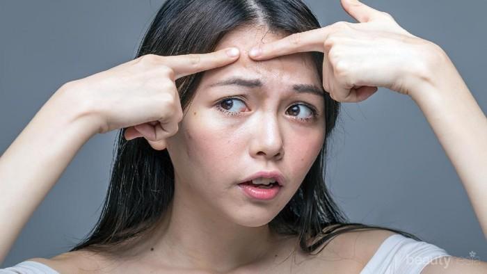 Hati-hati! 5 Bahan Makeup Ini Berpotensi Memunculkan Jerawat