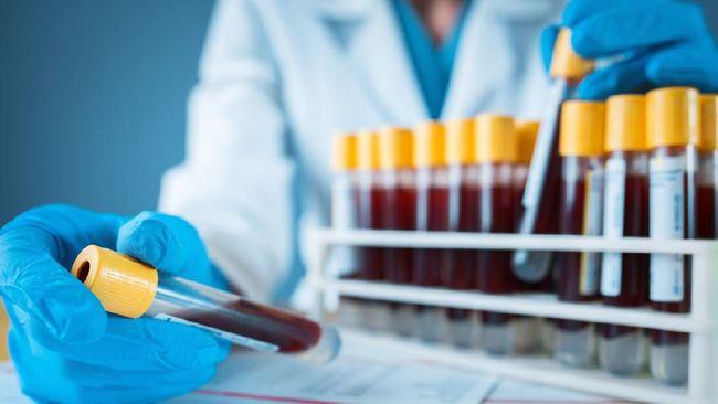 BPOM tak mempermasalahkan pengambilan sampel darah untuk proses uji Vaksin Nusantara selama bukan bagian dari permohonan kelanjutan izin edar vaksin.