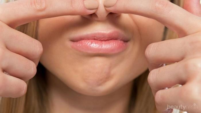 Bintik Hitam Komedo Mengganggu Penampilanmu? Yuk, Lawan dengan 4 Cara Jitu Ini!