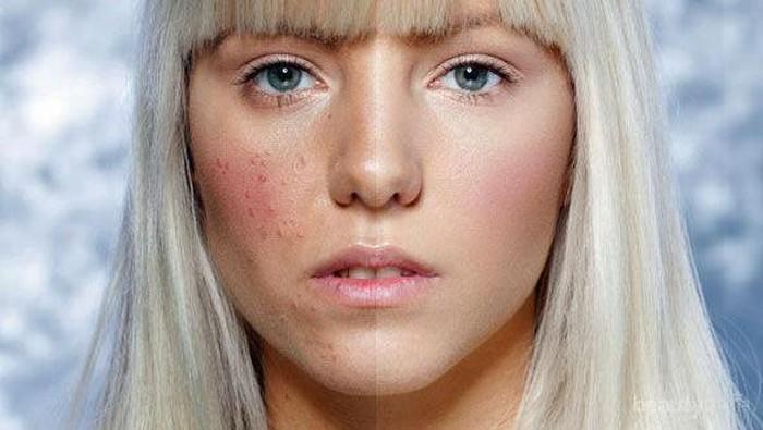 Eits, Bahan-Bahan Skincare Ini Wajib Kamu Hindari Jika Kulitmu Berjerawat!