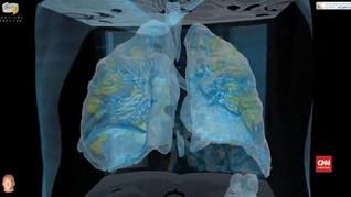 VIDEO: Melihat Paru-paru Pasien yang Terinfeksi Virus Corona