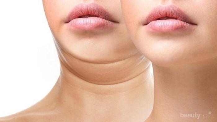 Cara Mengatasi Double Chin secara Alami