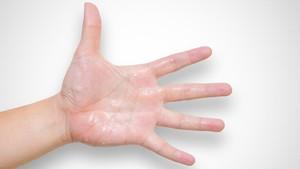 Penyebab dan Cara Mengatasi Telapak Tangan Berkeringat