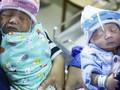 Satgas: Ibu Positif Covid-19 Boleh Kontak dengan Bayi