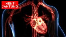 VIDEO : Penjelasan Dokter Soal Henti Jantung