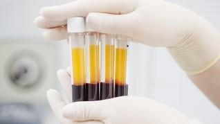 Plasma Darah Bisa Bantu Mengukur Keparahan Pasien Covid-19