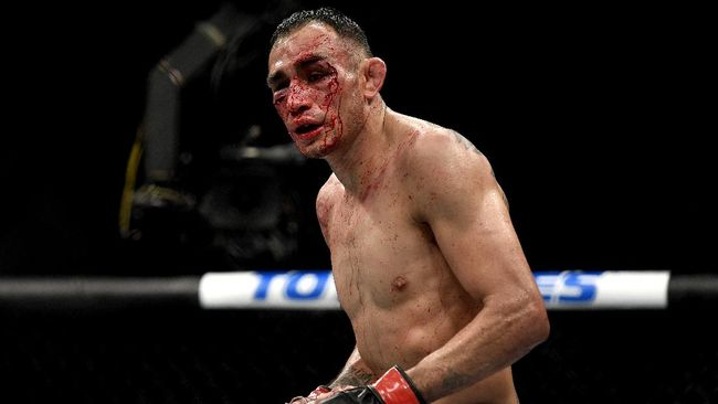 Tony Ferguson mungkin menyesali keputusannya tetap bertarung saat Khabib Nurmagomedov memilih mundur dari UFC 249.