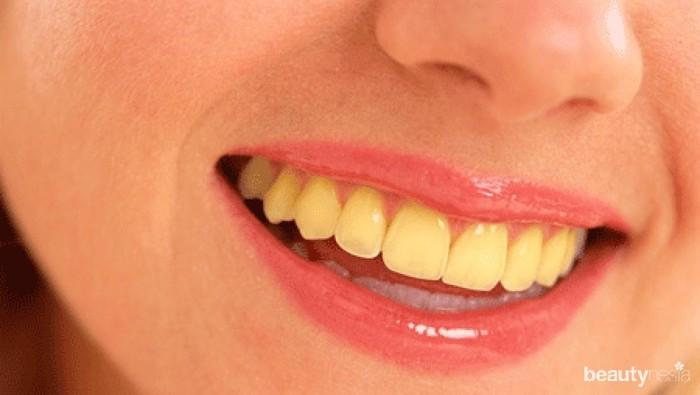 Waspada! Ini Dia 5 Faktor yang Bisa Membuat Gigi Menjadi Kuning