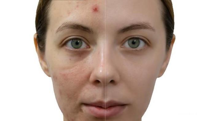 Menghilangkan Acne Scars Gak Boleh Sembarangan, Ini yang Harus Kamu Perhatikan!