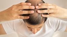 10 Cara Mengatasi Kebotakan, Tak Perlu Transplantasi Rambut