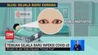 VIDEO: Temuan Gejala Baru Infeksi Covid-19