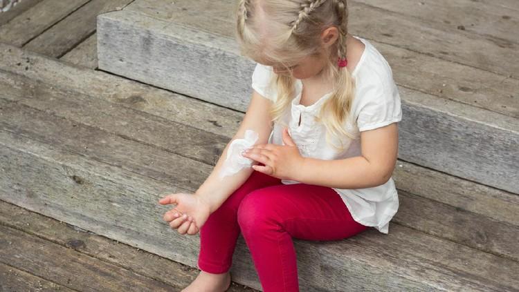Girl applying cream on allergic skin, eczema treatment.