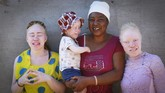 Joyce Muchenje,centre, poses for a photo with her three children, who all have albinism, outside their family home in Chitungwiza on the outskirts of Harare, in this Tuesday, June, 9, 2020.  Muchenje used to provide for them by washing laundry and household cleaning for cross border traders at a busy border town before the lockdown, but now the border trade has stopped and Mutenje has run out of money to get the skin cream for her children. (AP Photo/Tsvangirayi Mukwazhi)