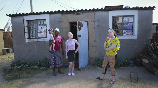 Joyce Muchenje, left, poses for a photo with her three children, who all have albinism ,outside their family home in Chitungwiza on the outskirts of Harare, in this Tuesday, June, 9, 2020 photo. Muchenje used to provide for them by washing laundry and household cleaning for cross border traders at a busy border town before the lockdown, but now the border trade has stopped and Mutenje has run out of money to get the skin cream for her children.(AP Photo/Tsvangirayi Mukwazhi)