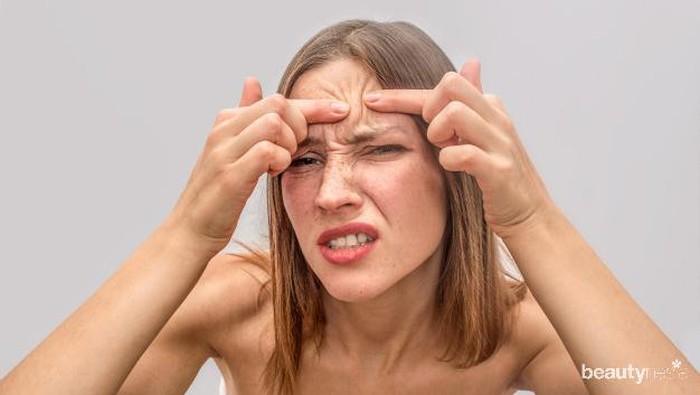 Timbul Rasa Gatal Pada Jerawat? Ternyata Ini Penyebabnya