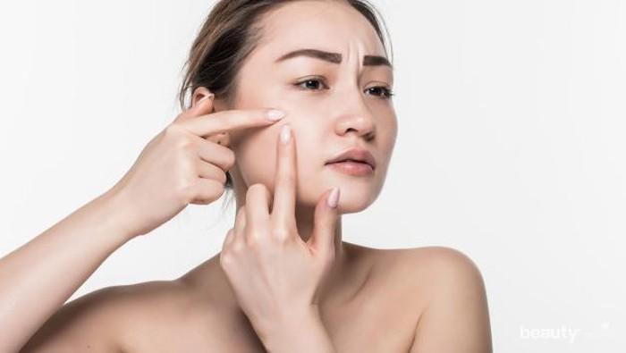 Atasi Jerawat dengan 7 Bahan Produk Skincare Ini