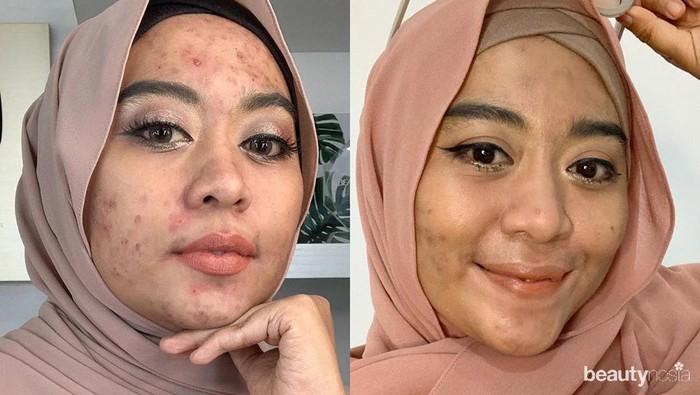 Acne Story: Beauty Vlogger Vindy Berjerawat karena Krim Abal - Abal