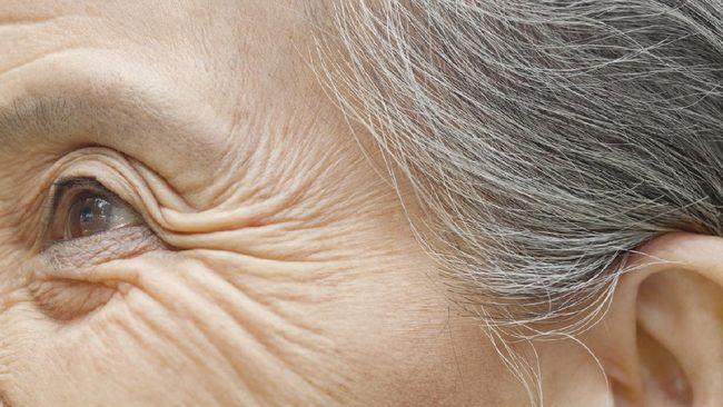 Sadarkah Anda bahwa kebiasaan tidur yang buruk bisa menyebabkan keriput dan penuaan dini pada kulit?