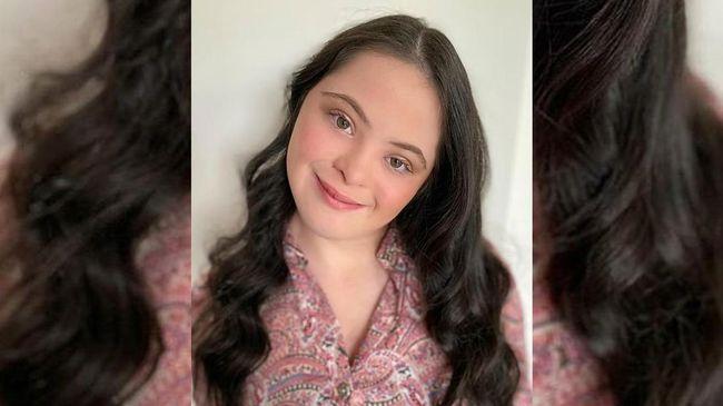 Ellie Goldstein
