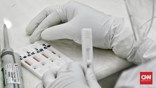 DPR Desak Pemerintah Batasi Harga Jual Alat Rapid Test Corona