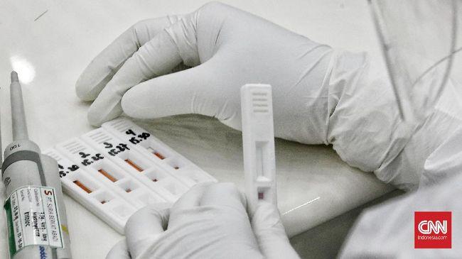 Petugas kesehatan menggunakan alat rapid diagnostic test Corona RI-GHA COVID-19  di ruang Heritage, Kemenko PMK, Jakarta. Kamis (9/7/2020). CNN Indonesia/Andry Novelino