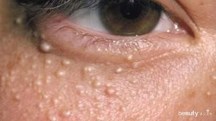 Begini Cara Menghilangkan Bintil-Bintil Putih Menganggu di Wajah