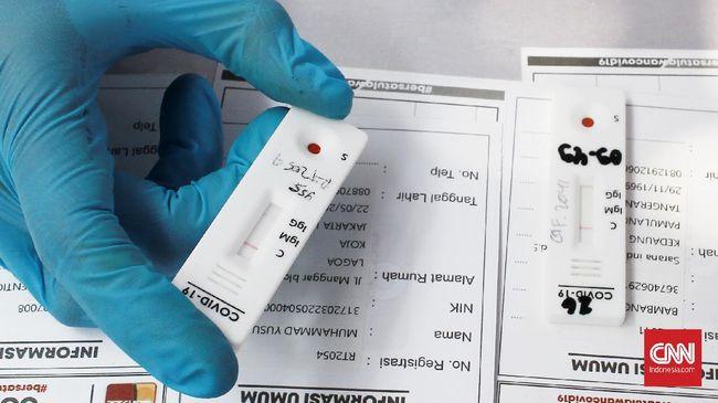 DKI Jakarta kembali mencatatkan rekor kasus harian dengan 2.096 orang dinyatakan positif terinfeksi virus corona (Covid-19) pada Jumat (25/12).