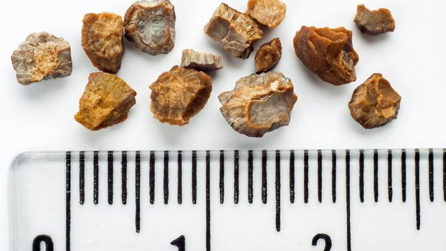 Ashanty mengungkapkan kebiasaan Anang yang menyebabkan batu ginjal yaitu kurang minum air putih. Berikut kebiasaan lain penyebab batu ginjal.