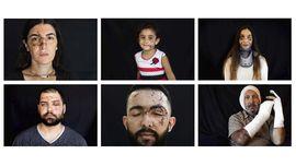 FOTO : Potret Goresan Luka Korban Ledakan Libanon