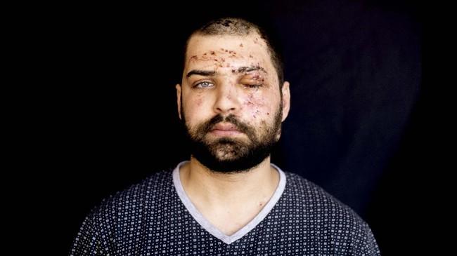 Ledakan di Beirut, Libanon, pada 4 Agustus lalu menewaskan 170 orang dan melukai lebih dari 5.000 orang.