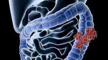 Studi Klaim Kopi Dapat Memperlambat Penyebaran Kanker Kolon