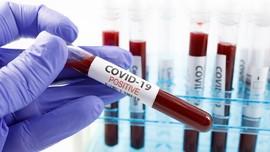 Slovakia Mulai Pengujian Virus Corona Secara Massal