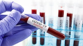 Celoteh Ilmuwan soal Covid-19 Sejak Wuhan Hingga Jadi Pandemi