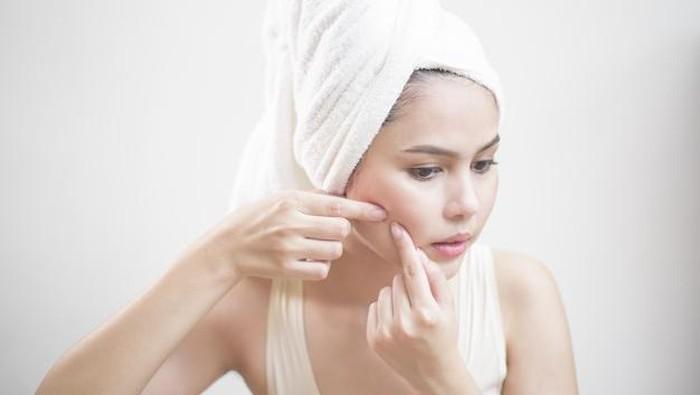 Rangkaian Skincare dan Rekomendasi Produk untuk Kulit Kering Berjerawat