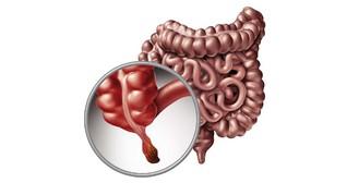 Manfaat Usus Buntu, Organ Tubuh yang Dianggap 'Tak Berguna'