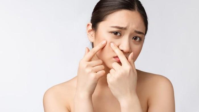 6 Kandungan Skincare yang Perlu Dihindari Kulit Berjerawat
