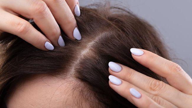 Jerawat bisa timbul di mana saja, termasuk di garis rambut. Berikut cara mencegahnya.