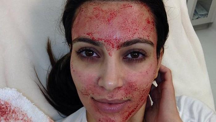 7 Selebriti Hollywood Ini Melakukan Treatment Kecantikan yang Cukup Gila