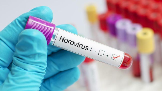 Gejala khas norovirus umumnya berupa mual, muntah, diare berair hingga kram perut. Namun ada pula gejala lain seperti demam ringan, sakit kepala dan nyeri otot.