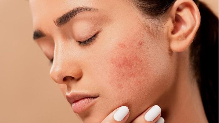 Bahan Alami untuk Menghilangkan Fungal Acne