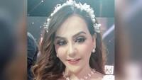 <p>Nita Thalia melakukan perawatan wajah sejak 2013, Bunda. Hal ini ia lakukan demi menunjang profesinya di atas panggung hiburan. (Foto: Instagram @nitatalia.real)</p>