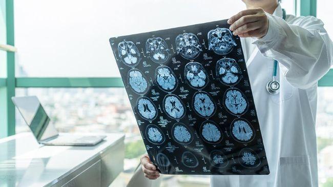 Periode emas penanganan pasien stroke selama 4,5 jam setelah serangan dapat mengurangi risiko kematian dan kecacatan permanen pada pasien.
