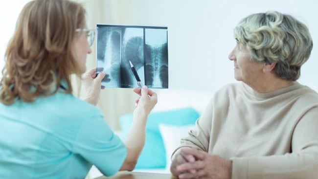 Berikut penyakit kanker yang paling mematikan, bahkan sangat rentan menyerang tanpa mengenal kelompok usia maupun jenis kelamin.