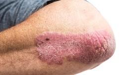Mengenal Psoriasis, Penyakit Kulit yang Diderita LeAnn Rimes