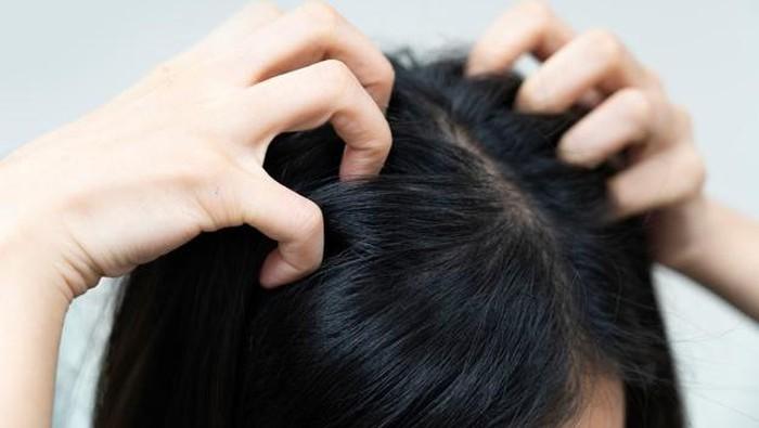 Jangan Salah! Ini Tips Jitu Mengatasi Kutu Rambut