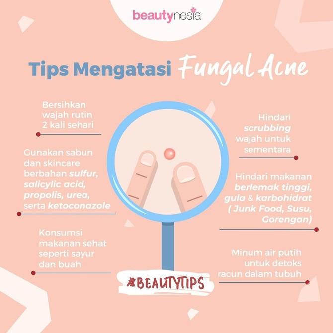 Infografis - Tips Mengatasi Fungal acne