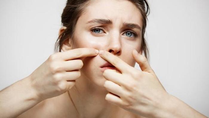 5 Rekomendasi Produk Skincare Lokal Terbaik untuk Kulit Berjerawat