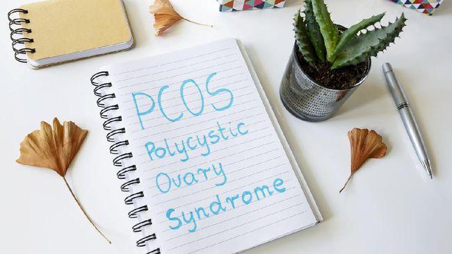 Media sosial digemparkan dengan pengakuan seorang wanita yang tak haid selama 10 bulan karena PCOS. Apa itu PCOS, gejala, dan penyebabnya?