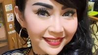 <p>Belum lama ini, Ratna Listy mengaku melakukan operasi plastik di bagian hidung. Ingin tampil seperti gadis lagi, presenter yang kini membawakan program horor ini juga menjalani prosedur sedot lemak di bagian perut. (Foto: Instagram @ratna_listy)</p>